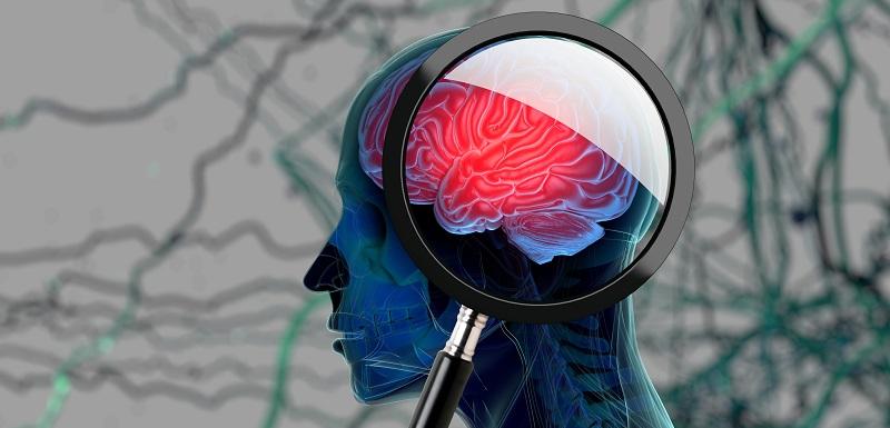 Un entraînement cérébral  pour traiter la schizophrénie sévère ?